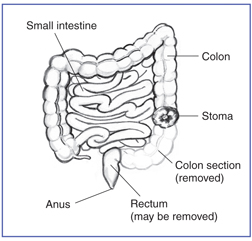 colotomy